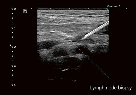 Lymph node biopsy