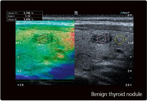 Benign thyroid nodule